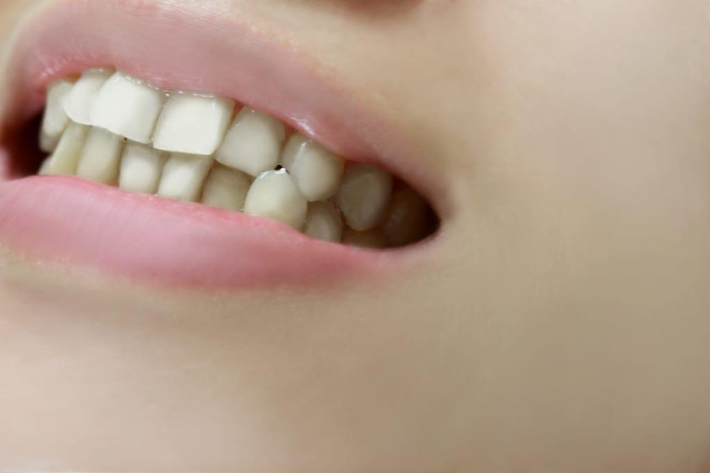 歯の黒ずみを解消したい!歯の黒ずみの原因と除去する方法