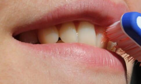 差し歯だけどホワイトニングしたい!差し歯を白くする方法